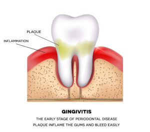 Gingivitus